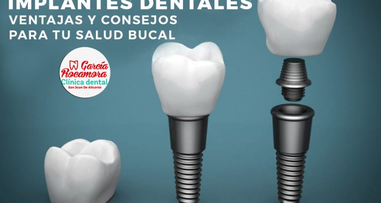 oferta implantes dentales clinica dental alicante