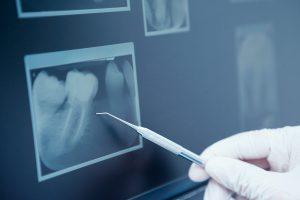 radiografia gratis oferta clinica dental alicante san juan garcia rocamora