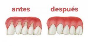 encias retracción clinica dental san juan alicante