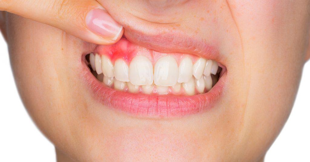 clinica dental garcia rocamora san juan de alicante gingivitis