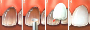 carillas dentales clinica alicante