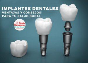oferta implantes dentales clinica dental alicante