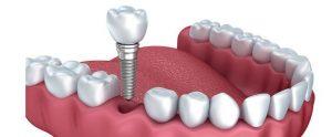 que es precio implante clínica dental alicante