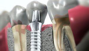 oferta implantes dentales clinica dental san juan alicante