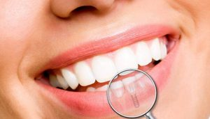 que es implante dental alicante