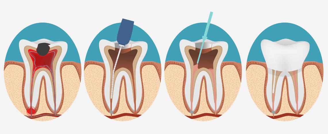 endodoncia clinica dental san juan alicante