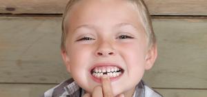 malos habitos infantiles clinica dental alicante