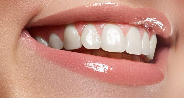 placa dental clinica garcia rocamora san juan de alicante