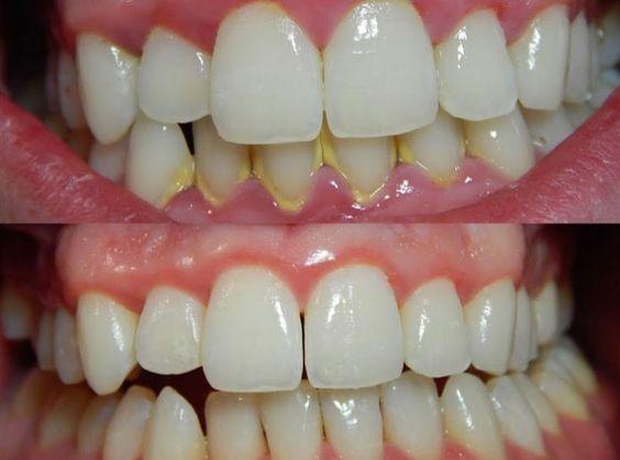sarro clinica dental san juan de alicante
