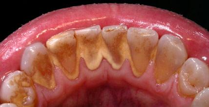 sarro dental clinica garcia rocamora san juan de alicante