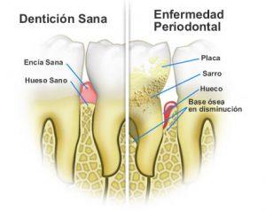 curetaje dental - raspado-alisado-dental-curetaje clinica dental san juan alicante