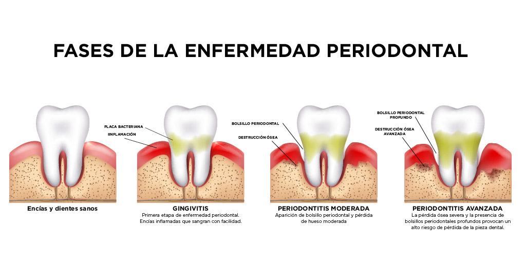 fases_periodontitis clinica dental san juan alicante